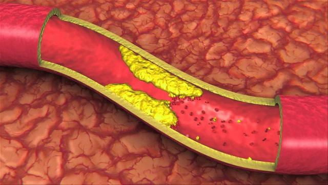 Máu nhiễm mỡ gây tắc mạch máu, dẫn đến nhiều biến chứng nguy hiểm