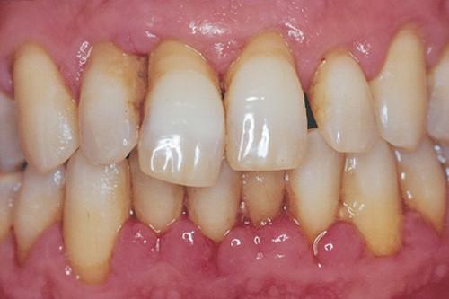 Bài thuốc chữa viêm chân răng - Ảnh 1.
