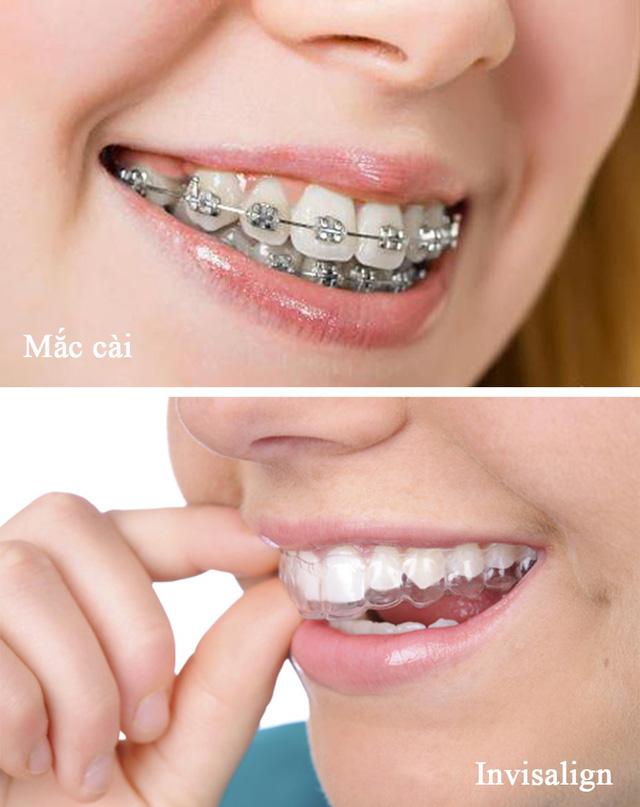 Công nghệ niềng răng Invisalign (ảnh dưới) sẽ không gây mất tự tin.