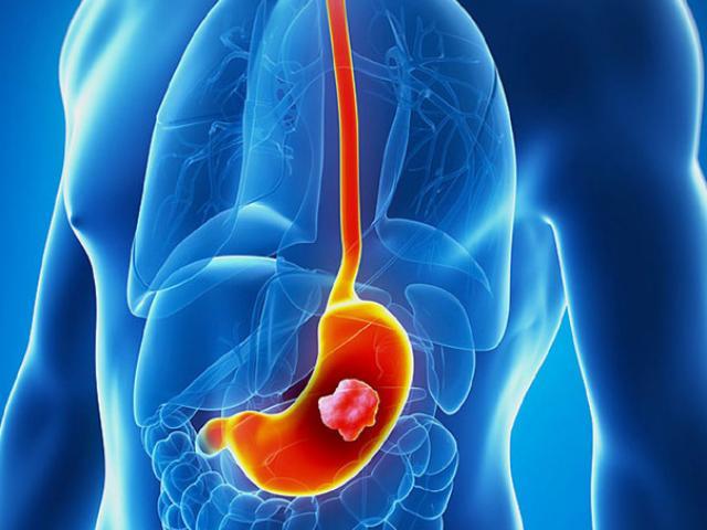 Triệu chứng ung thư dạ dày là gì? Nguyên nhân và cách điều trị
