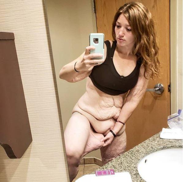 Hậu giảm cân, Lexi phải tìm cách sống chung với 3kg da thừa
