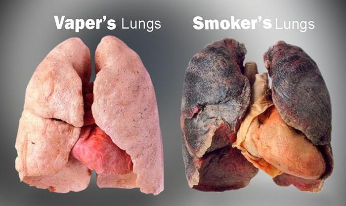 Cai thuốc lá Hoa Nam Hết ngay cảm giác thèm thuốc lá