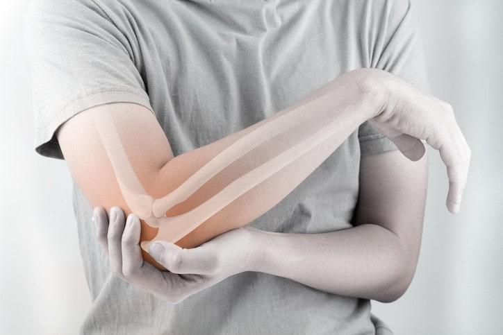 Băng khuỷu tay bảo vệ dây chằng khuỷu tay nào tốt