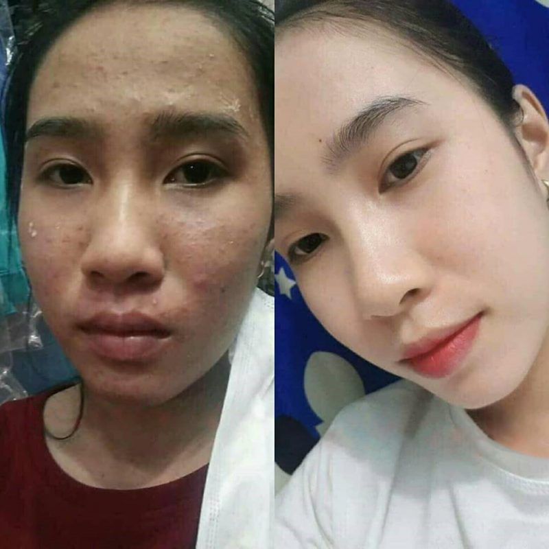 Xịt lợi khuẩn trị mụn Skin Fresh 3